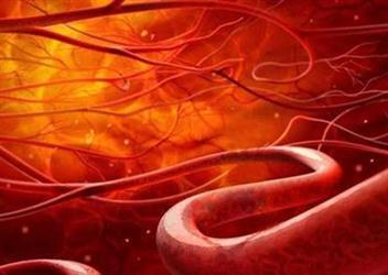 """""""软化血管""""谣言忽悠了十亿国人真相只有1个"""