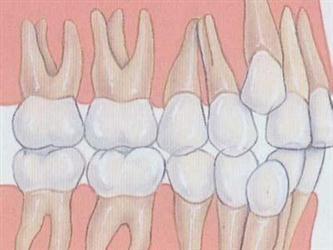 """牙齿是怎样被""""吃掉""""的"""