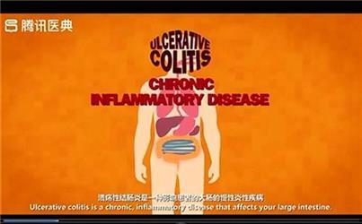 什么是溃疡性结肠炎?
