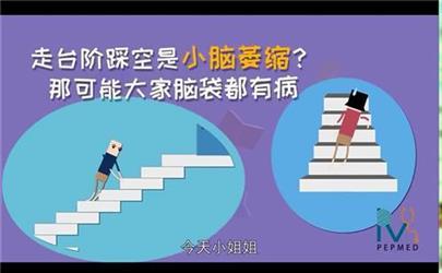 楼梯踏空是因为小脑不发达?