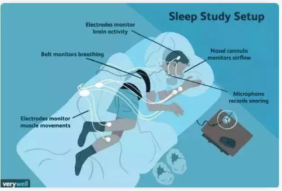 昨晚,你睡的好么?如果出现这几种情况,你可能生病了!