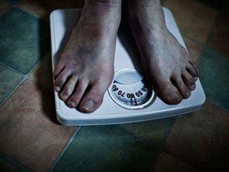 研究:成年肥胖可能源自幼年基因变异