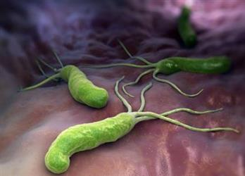 感染了幽门螺杆菌,一定要治吗?