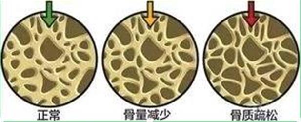"""预防骨质疏松,不能一""""钙""""而论!"""