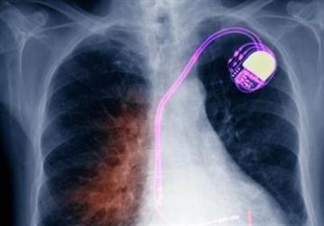 耗资上亿研究表明:植入心脏支架并无明显益处
