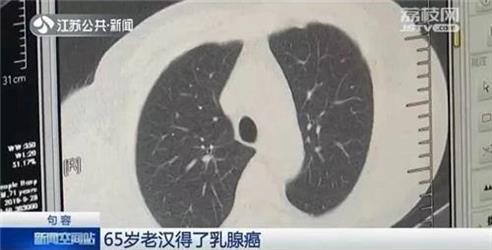 65岁老伯得了乳腺癌?是真的!医生:男人得这病可能更严重!