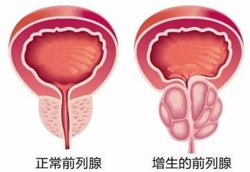 预防前列腺增生要从40岁开始