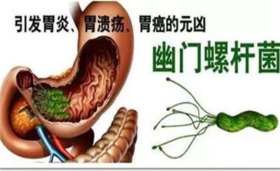 胃痛腹胀早饱或是幽门螺杆菌作祟
