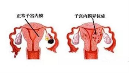 """痛经、性交痛、长期慢性腹痛......会影响你的好""""孕""""!"""